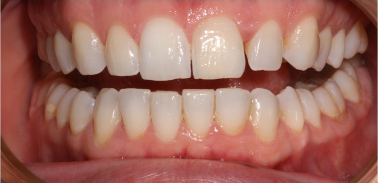 whitening-dunstable-after