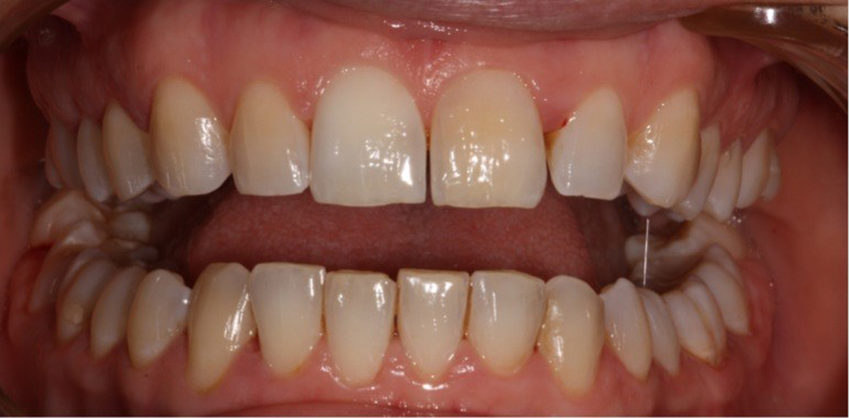 whitening-dunstable-before